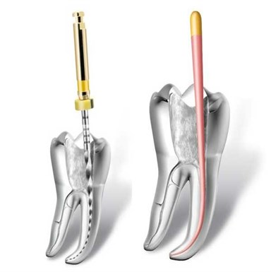 Root-canal Treatment